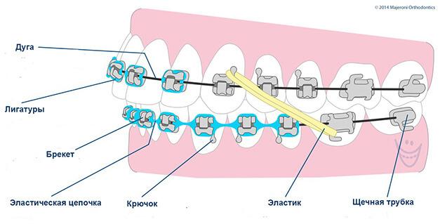 брекет система