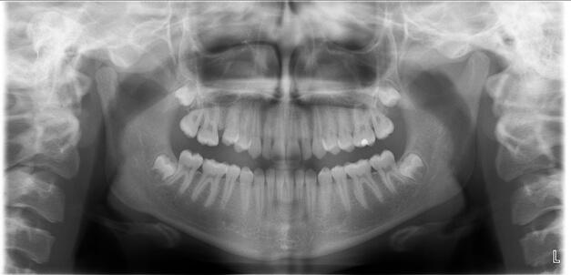 рентген снимок